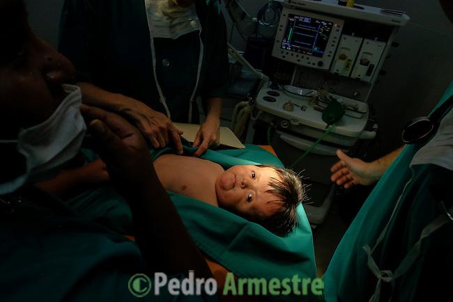 2015-03-03. UN ÁNGEL CON LAS ALAS PEGADAS. © Calamar2/Susana HIDALGO & Pedro ARMESTRE<br /> <br />   Ángel César Alonso, de 10 meses, nació por cesárea en Chiclayo (Perú) y los médicos le diagnosticaron síndrome de Apert, una enfermedad genética que afecta a la forma de la cabeza y que hace que el pequeño tenga los ojos abultados y padezca sindactilia (los dedos de las manos y de los pies pegados). El síndrome de Apert es una de las 7.000 enfermedades raras que existen en el mundo y su prevalencia oscila entre 1 y 6 casos por cada 100.000 nacimientos. La historia de este bebé es la historia de unos padres coraje, César Cruz y Edita Jiménez, que se desviven para que el pequeño pueda tener la mejor calidad de vida posible. César y Edita acudieron el pasado mes de marzo junto a su bebé al hospital San Juan de Dios, en Chiclayo, al reclamo de una campaña solidaria de intervenciones quirúrgicas organizadas por la Sociedad Española de Cirugía Plástica, Reparadora y Estética (Secpre) y la ONG Juan Ciudad. Los cirujanos españoles le operaron las manos para separar unos dedos de otros. La intervención duró aproximadamente una hora y media y el pequeño necesitó de curas posteriores.<br /> La operación fue el primer paso en la mejora de la salud de Ángel. Necesitará al menos otra más para separar los dedos de los pies. Sus padres son humildes y apenas tienen recursos.  César, el padre, trabaja levantando casas de adobe. Edita, la madre, vive para su hijo y le gustaría en un futuro retomar su profesión de enfermera. © Calamar2/Pedro ARMESTRE<br /> <br />  AN ANGEL WITH THE WINGS ATTACHED. © Calamar2/Susana HIDALGO & Pedro ARMESTRE<br /> <br /> Angel César Alonso was born in Chiclayo (Peru) and was diagnosed with Apert syndrome, a genetic disease that affects the shape of the head and makes him having eyes bulging and suffering syndactyly (the fingers and feet flat). The story of this baby is the story of parents courage: Edita César Jiménez Cruz, who are fighting everyday to gi