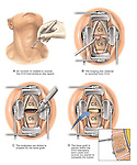 Spinal Fusion Surgery - C5-6 - Anterior Cervical Discectomy (Diskectomy). Surgical Steps: 1. Incision into the anterior (front) of the neck over the C5-6 level; 2. Discectomy and decompression of the neural elements; 3. Debridement of the vertebral endplates in preparation for graft material; 4. Placement of bone graft for fusion. A small inset drawing shows the final application of a plate and screws to assist in the fusion.