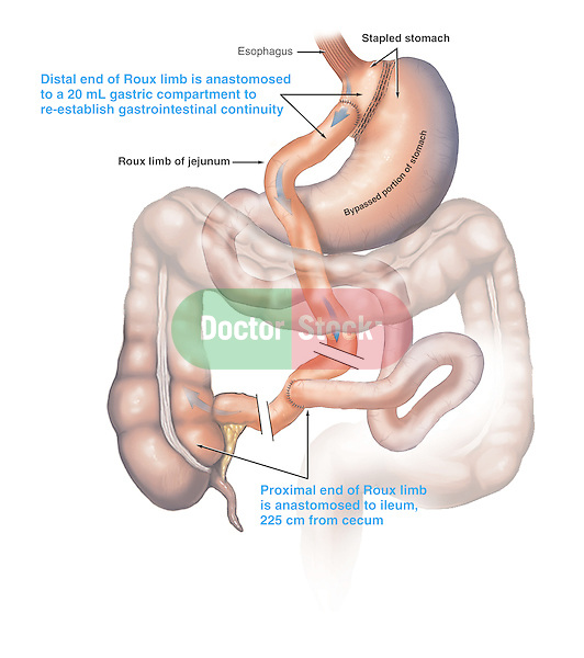 Stomach - Roux-en-Y Gastric Bypass Surgery. Shows typical stomach stapling procedure (stapled stomach) with the small bowel surgically anastomosed to bypass the stomach and proximal intestines.