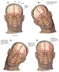 Dramatically depicts the mechanism of a closed head injury with a side-to-side whiplash motion. Shows a front view of the head with the brain in normal position. Injury steps: 1. Head and neck moving violently to the person's right, with the left fronto-temporal region impacting the inner surface of the skull; 2. Head and neck moving violently to the left, with the right fronto-temporal region impacting the inner skull; and 3. Resulting brain damage to the right and left fronto-temporal regions of the brain.