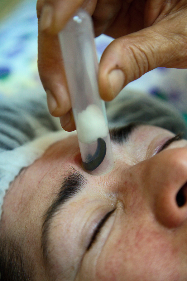 Moscow, Russia, 24/09/2011..A doctor fixes leeches to a patient at a private central Moscow clinic. The clinic, which specialises in natural medical treatments, uses leeches to treat a range of ailments.