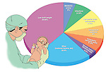 This full color medical-legal chart features a pie graph illustrating the causes of cerebral palsy in the newborn. Captions include: low birth weight, metabolic errors, infections, congenital brain abnormality, intrapartum asphyxia, intrauterine ischemic event, genetic and/or chromosomal errors and other factors.