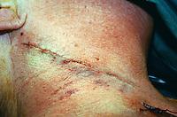 Carotid endarterectomy surgery. Sutures in the incision in the neck...©shoutpictures.com.john@shoutpictures.com