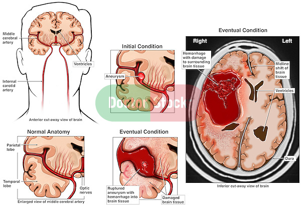 Ruptured Cerebral Artery Aneurysm. This medical exhibit features a cerebral aneurysm of the middle cerebral artery, its rupture and  subsquent brain damage. Included is an interpretation a film of the hemorrhage (bleeding).
