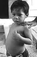 Small boy in slum area staring while an adult places hand on his shoulder.