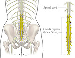 An illustration of the lower spinal cord, featuring the cauda equina.
