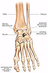 This medical exhibit pictures an anterior view of the bones of the feet and ankles with labels for the tibia, fibula, medial malleolus, talus, inferior articular surface of the tibia and lateral malleolus.
