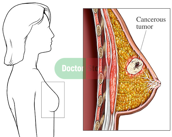 This full color medical illustration pictures a cancerous tumor within the female breast. The first graphic provides a line orientation to the female breast in a lateral (side) view. A separate enlarged image identifies and illustrates the tumor within the breast tissue. ....