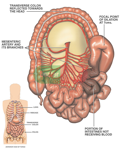 Anatomy of Superior Mesenteric Artery with Lack of Blood Supply to the Intestine.