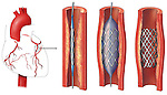 This stock image reveals an orientation view of the arteries of the heart and three enlargments of a portion of a coronary artery revealing the following:..1. Blockage or coronary artery with stent and deflated balloon inserted...2. Inflation of balloon and expansion of stent...3. Deflated balloon removed leaving expanded stent in place. Note that the width of the arterial wall is expanded outwardly to accomodate the hard, compressed plaque formation.