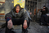 A dazed protester who has been badly injured.  Kiev, Ukraine