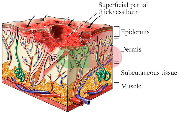 Second Degree Burns -Superficial Partial Thickness. This exhibit illustrates a single cut-section through a block of skin revealing the depth and extent of a second degree, partial thickness skin burn. major skin structures such as hair follicles, sweat glands etc. can be seen in the details of the skin section. Specific labels identify the superficial partial thickness burn, epidermis, dermis, subcutaneous tissue and muscle..