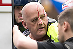 """© Joel Goodman - 07973 332324 . 11/06/2017 . Manchester , UK . A demonstrator with blood on his head is detained and put in to the back of a police van as far-right protesters continue to fight with police after the end of the demonstration . Demonstration against Islamic hate , organised by former EDL leader Tommy Robinson's """" UK Against Hate """" and opposed by a counter demonstration of anti-fascist groups . UK Against Hate say their silent march from Piccadilly Train Station to a rally in Piccadilly Gardens in central Manchester is in response to a terrorist attack at an Ariana Grande concert in Manchester , and is on the anniversary of the gun massacre at the Pulse nightclub in Orlando . Photo credit : Joel Goodman"""