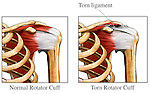 Rotator Cuff - Injury