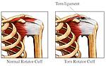 Rotator Cuff - Injury