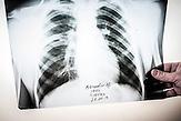 Röntgenbild von Nikolaj. Die Tuberkulose wird durch das<br />Mycobakterium tuberculosis hervorgerufen und in der<br />überwiegenden Mehrzahl aller Fälle durch Tröpfcheninfektion von<br />Mensch zu Mensch übertragen. Nur zehn Prozent der Infizierten<br />entwickeln eine aktive Tuberkulose. // Moldova is still the poorest country of Europe. Hopes to join the European Union are high. After progress in the past years tuberculosis is on the rise again. The number of new patients raise since 2010 and is on a level that has not been reached since the late 90s.