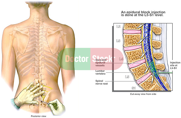 Lumbar Epidural Injection. This stock medical exhibit features the following images: 1. Posterior view of a female torso showing the needle placement site in the lower back, 2. A detailed sagittal (cut-away) view of the spine revealing the needle placement between L5 and S1 with injection of anesthesia into the lumbar epidural space.