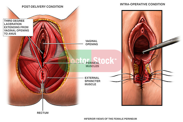 Third Degree Episiotomy Tear with Surgical Repair