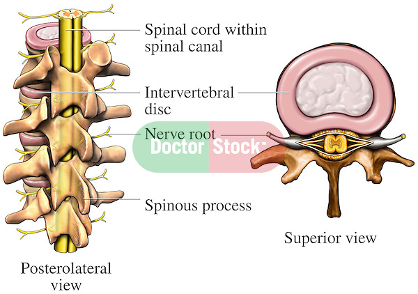 This medical exhibit depicts the anatomy of the spine, featuring the middle thoracic vertebrae and spinal cord. It shows a posterolateral (behind and left) full color orientation view of four thoracic vertebrae, intervertebral discs, spinal cord and exiting nerve roots. A  superior (top) view of a single vertebra shows the vertebral body, spinal cord and exiting nerve roots. Labels include the spinal cord within the spinal canal, intervertebral disc, nerve root and spinous process.