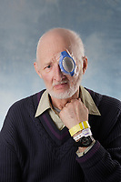 Montreal QC CANADA - Feb 2009 - A 70 year old caucasian male after an eye laser operation to correct his eyesight.