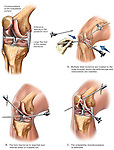 Knee Surgery. This full color medical exhibit depicts a knee with chondromalacia and tears in the medial meniscus as well as a surgical procedure to correct the problem. The exhibit consists of four images. The first image shows the pathology of the knee. The following three images depict a laparoscopic procedure to repair the problem..