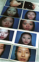 Photos of previous cosmetic surgery patients (before and after) are kept in a book at a state hospital in Shenzhen, China. As the Chinese population grows richer more and people are turning to cosmetic surgeons for nose, eye and breast jobs...PHOTO BY SINOPIX
