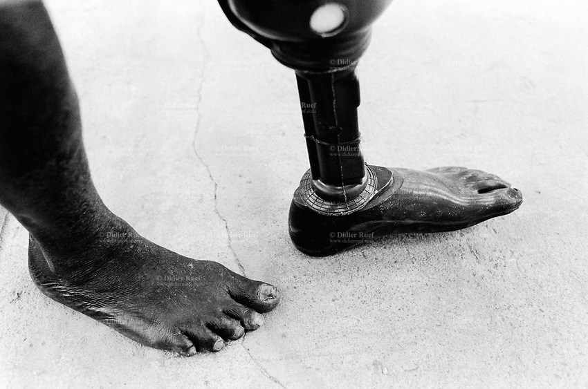 Angola. Province of Bié. Kuito. The town was heavily destroyed in 1993-1994 and 1998-1999 due to the intense civil war between the Government and Unita. Hospital. ICRC (International Commitee for the Red Cross) Orthopaedic programme. Beneficiaries are the lower limb amputees. Fitting of a new prothese on the left leg which gives the patient the opportunity to walk again.The man will remain physically handicapped. © 2000 Didier Ruef