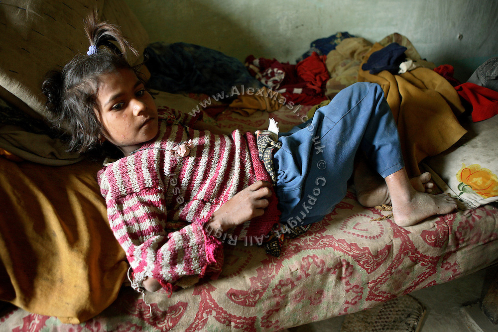 Kapil, a 12-year-old girl from Jaibheem Nagar, pop. 10000, a large slum located near the banks of the Kali river (East), Meerut District, Uttar Pradesh, India, is sitting on her bed during a hot spring afternoon, on Sunday, Mar. 16, 2008. Her family is affected by water contaminated with heavy metals and pesticides delivered by their private hand-pump as they cannot collect it from far 2-3 kilometres away on an everyday basis. Throughout her body and face a skin allergy is noticeable, and her family laments the same problem as well as regular stomach pain.