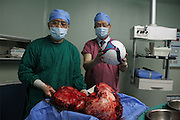 GUANGZHOU, CHINA - (CHINA OUT) <br /> <br /> 15kg Intraperitoneal Tumor Removed From 11-Year-Old Girl<br /> <br /> The main surgeon Professor Li and Dean Xu Kecheng express their excitement after removing a 15kg intraperitoneal tumor  in Guangzhou, Guangdong Province of China. Han Bingbing, an 11-year-old girl from Heilongjiang, successfully received an 8-hour surgery operation to remove an intraperitoneal tumor. After 4 years, the tumor had reached a weight of 15kg and a size bigger than two footballs. As of June 18th, the tumor filled 5/6 of Bingbing's abdomen and caused her internal organs to gradually collapse. The Xukecheng Health Care Corporation raised a donation of 120 thousand RMB (19.3 thousand USD) that went towards Bingbings surgery.<br /> ©Exclusivepix