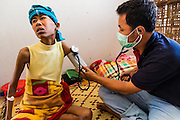 03 MARCH 2104 - MAE KASA, TAK, THAILAND: A medic takes the vitals of a 33 year old woman with HIV and tuberculosis at the Sanatorium Center for Border Communities in Mae Kasa, about 30 minutes north of Mae Sot, Thailand. The Sanatorium provides treatment and housing for people with tuberculosis in an isolated setting for about 68 patients, all Burmese. The clinic is operated by the Shoklo Malaria Research Unit and works with several other NGOs that assist Burmese people in Thailand. Reforms in Myanmar have alllowed NGOs to operate in Myanmar, as a result many NGOs are shifting resources to operations in Myanmar, leaving Burmese migrants and refugees in Thailand vulnerable. Funding cuts could jeopardize programs at the clinic. TB is a serious health challenge in Burma, which has one of the highest rates of TB in the world. The TB rate in Thailand is ¼ to ⅕ the rate in Burma.        PHOTO BY JACK KURTZ