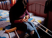 """""""Yill"""", a Honduran migrant woman, 28, lost her right leg after falling down from the train in Huehuetoca, at the north of Estado de Mexico in this photo taken in August 2010. After being rescued by volunteers, she stayed some time  in the migrants shelter """"San Juan Diego Cuauhtlatoatzin"""" in Lechería. (Photo: Prometeo Lucero)"""