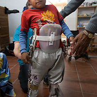 Miguel was paralyzed two years ago in a bicycle accident and was fitted with a reticulated gait brace that, with assistance, will be able to stand and walk.