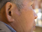 close up of an elderly man with a skin mark near his ear
