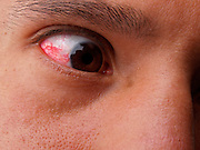 The eye of a person with a red eye due to few hours of sleep.
