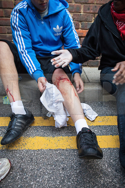 © Licensed to London News Pictures . 08/08/2011 . London , UK . An injured looter on Clarence Road on the Pembury Estate in Hackney during a 3rd night of rioting and looting in London , which followed a protest against the police shooting of Mark Duggan in Tottenham . Photo credit : Joel Goodman/LNP