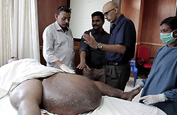 "EXCLUSIVE: Bed-ridden man walks again after 14 kg sac of swollen mass dangling from his thigh removed. NDIA,KOCHI, February 14, 2018 – Saidalavi, a 46-year-old man hailing from Kerala's Thrissur district, was bedridden for the last two years because of a humungous swollen mass hanging from his left thigh in a sac like structure that weighed a staggering 14 kg. He got afflicted with lymphatic filariasis (elephantiasis) three decades ago and underwent a couple of surgeries over the years, but to no avail – the swelling kept increasing. The patient could move with great difficulty with the help of his aged mother and two brothers. His family members ran pillar to post, but no doctor was ready to take up his case due to the sheer size of the swelling which gave his leg a grotesque appearance. It was a race against time as his swollen legs had begun to get infected. Saidalavi's life changed radically for the better a few days ago when a team of five surgeons and three anesthetists at Amrita Institute of Medical Sciences in Kochi removed the deformity in a surgery that lasted over five hours. Said Dr. Subramania Iyer, Head, Plastic & Reconstructive Surgery, Amrita Institute of Medical Sciences, Kochi: ""It was a complex surgery. Several complications could rise because of the patient being overweight and his inability to walk. First, we treated him for four weeks with intensive antibiotic therapy to control infection in his legs. Then, the challenge was to institute Comprehensive Decongestive Therapy (CDT) which plays a major role in preparing a lymphedema patient for surgical treatment. In Saidalavi's case, this went on for a month and involved Manual Lymphatic Drainage (MLD) and a special method of bandaging to make the legs softer by pushing the accumulated fluid to other parts of the body. The size of his swollen legs and immobility made this very difficult and needed at least four therapists instead of the usual one."" Dr. Subramania Iyer added: ""Finall"