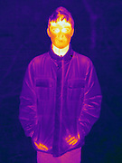 A Thermogram of a young boy, outside without a hat. The different colors represent different temperatures on the object. The lightest colors are the hottest temperatures, while the darker colors represent a cooler temperature.  Thermography uses special cameras that can detect light in the far-infrared range of the electromagnetic spectrum (900?14,000 nanometers or 0.9?14 µm) and creates an  image of the objects temperature..This image is part of a series.