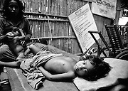 A child wounded in shelling at a Khmer Rouge camp on the Thai-Cambodian border. Half the population of Cambodia was murdered during the genocide of Pol Pot.
