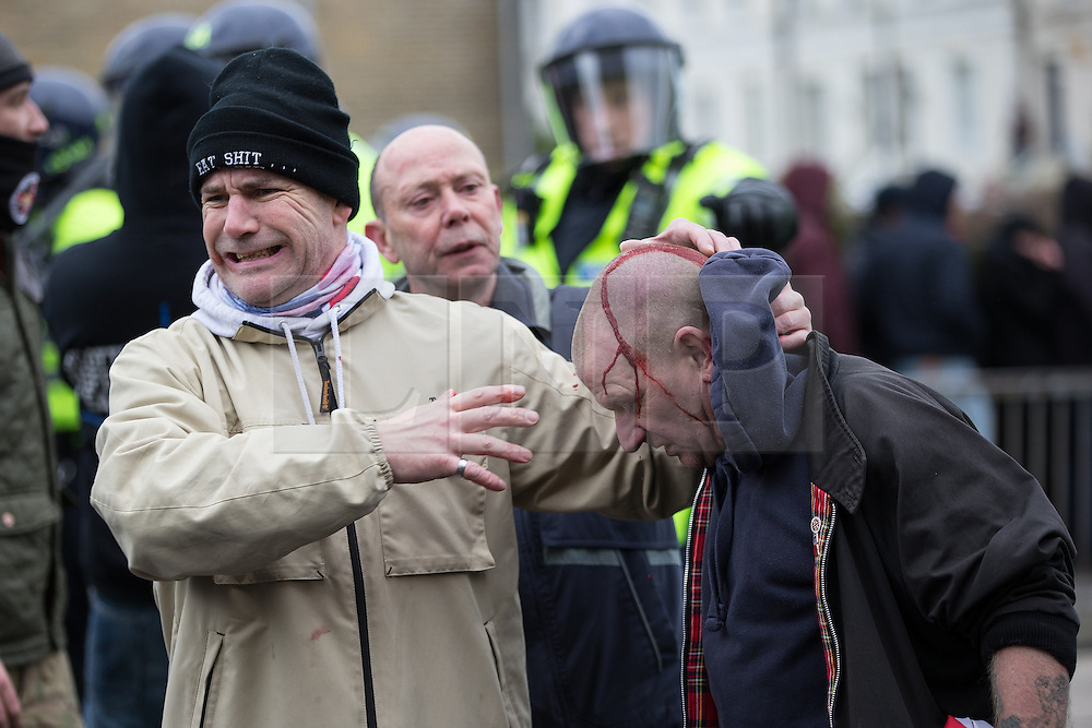 © Licensed to London News Pictures . 30/01/2016 . Dover , UK . An injured far fight protester at the demonstration . Demonstrations by far-right groups (including The National Front , The North West Infidels and The South East Alliance ) and , opposing them , anti-fascists , close to the port of Dover in Kent . Photo credit : Joel Goodman/LNP