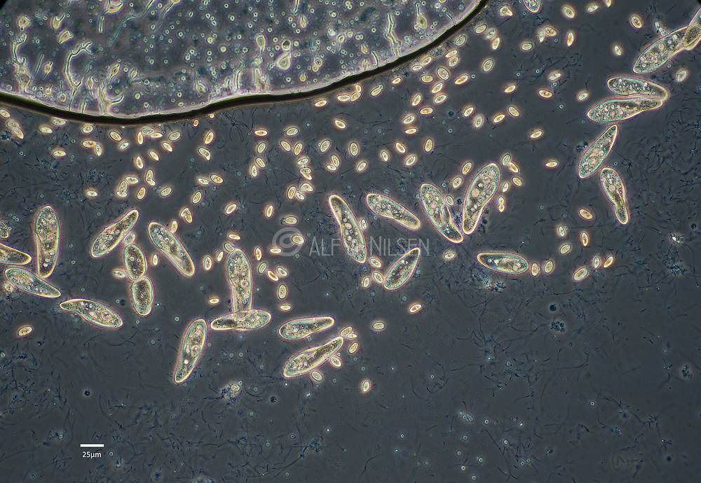 Ciliates (Paramecium sp.) feeding on bacteria in a freshwater culture