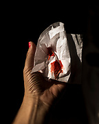 I hold a blood stained tissue after a very early pregnancy loss in Buenos Aires, Argentina on May 3, 2020. After a week of heavy emotions during full lockdown, my body ended the pregnancy before it had really begun.