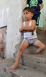 """30.07.2015, Rafah, PSE, Kriegsversehrte, im Bild die beiden Kriegsversehrten Wael al Namla und sein viehrjhähriger Sohn Sharif Al Namla, beide Unterschenkel amputiert. // Palestinian Sharif Al-Namla, who was injured during the 50-day war between Israel and Hamas militants in the summer of 2014, plays at his family's house. Sharif, 4, was reportedly amputated after being injured during an Israeli strike on August 1, 2014, which has become known as """"Black Friday"""". An analysis of an Israeli assault in the Gaza Strip following the capture of one of its soldiers during last year's war in the Palestinian territory shows """"strong evidence"""" of war crimes """"in their relentless and massive bombardment of residential areas of Rafah"""", Amnesty International said, Palestine on 2015/07/30. EXPA Pictures © 2015, PhotoCredit: EXPA/ APAimages/ Abed Rahim Khatib<br /> <br /> *****ATTENTION - for AUT, GER, SUI, ITA, POL, CRO, SRB only*****"""