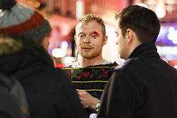 """© licensed to London News Pictures. London, UK 14/12/2013. A """"Mad Friday"""" reveller gets injured in a fight in Soho, London whilst enjoying the last Friday night out before Christmas, which is also the busiest night of the year for emergency services. Photo credit: Tolga Akmen/LNP"""