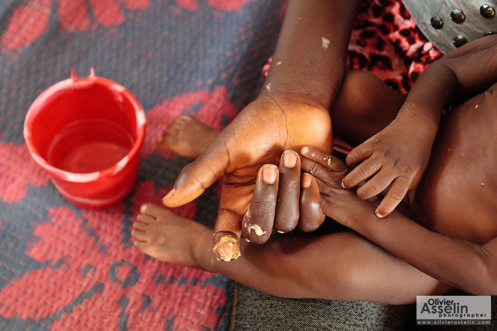Chacklie Soman, 17, holds the hand of her son Leo Karsor, 8 months, who is malnourished, while feeding him ready-to-eat therapeutic food at the Pipeline health center in Monrovia, Montserrado county, Liberia on Monday April 2, 2012.