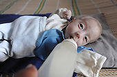 80-day-old Baby Born With No Anus