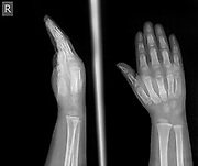 x-ray of the wrist and hand of a 2 year old female patient showing 2 and 3 metacarpal fractures