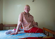 The Darkest Shade of White: An in depth look into the lives of Tanzania's persecuted albinos <br /> <br /> Meeting  with  the  albino  children  from  the  Under  The  Same  Sun  organization  is  no  small  feat.  Here,  in  Tanzania,  their  bodies  are  worth  more  than  gold.  Witchdoctors  use  their  appendages including  noses,  genitals,  tongues,  fingers,  hands,  and  ears  to  supposedly  bring  their  clients good  luck  in  politics,  business,  or  even  mining.  Needless  to  say,  the  organization  must  keep them under constant protection for their security.   At least 76 albinos have been murdered in Tanzania since 2000. In  early 2015, 200 people were arrested as part of a crackdown on  the criminal element that hunts the albinos. The Tanzanian President   Jakaya   Kikwete   denounced   the   attacks,   calling   themDzdisgustingdz   and Dza   big embarrassment to the  nationdz.  But  with body parts  selling for $500 and entire  bodies fetching $75,000,  the  fight  to  end  albino  persecution  will  be  difficult  in  a  country  where  the  average monthly salary is less than 40 US dollars. Before  entering  the  children's house,  a  guard  checks  my  bags.  Tension  is  particularly  high  at this  time  as  the  Tanzanian  general  election  is  right  around  the  corner.  Voters  will  elect  the President, members of Parliament and local government officials.  Ester, the woman who takes care  of  the  children  on  a  daily  basis,  tells  me  how  worried  she  is  about  these  upcoming elections.  She  assures  me  that  after  I  hear  the  stories  of  the  children's  suffering,  I  will  be  moved  and impressed  by  their  strength.  Many  have  been  maimed.  Many  have  lost  their  families.  Even worse: some were sold or attacked by their families. I'm half expecting to walk into a room full of traumatized kids, trembling in complete silence, with far away gazes. To my relief, they are not like that at all. Sure, I meet s