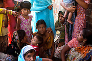 A girl is being examined by a member of The Bhopal Medical Appeal during a community meeting near the abandoned Union Carbide (now DOW Chemical) factory in Bhopal, Madhya Pradesh, India, site of the infamous 1984 gas disaster.