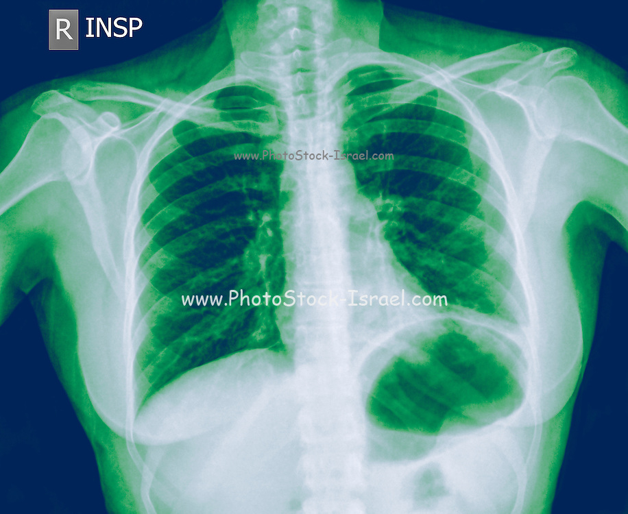 Chest x-ray of a 30 year old female patient with signs of pneumonia in the Left Lower Lobe (LLL) of her lung Front View