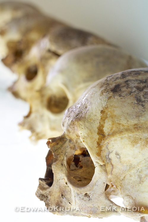 Human skull found in a mass grave in Lisbon after the great earthquake of 1755.